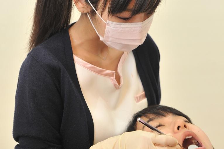 3. 矯正中に虫歯治療ができるので、衛生的にも安心!